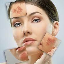 Posti sulle medicine di faccia con zinco